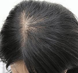 30代の薄毛