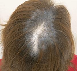 40代の薄毛