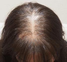 50代の薄毛